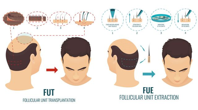 What is a hair transplant? 2